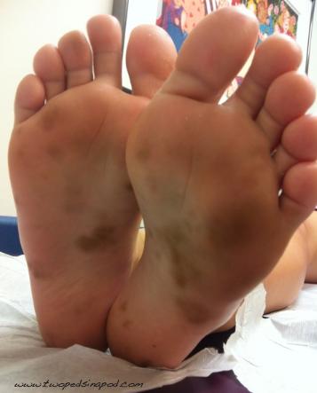 brown spots on feet